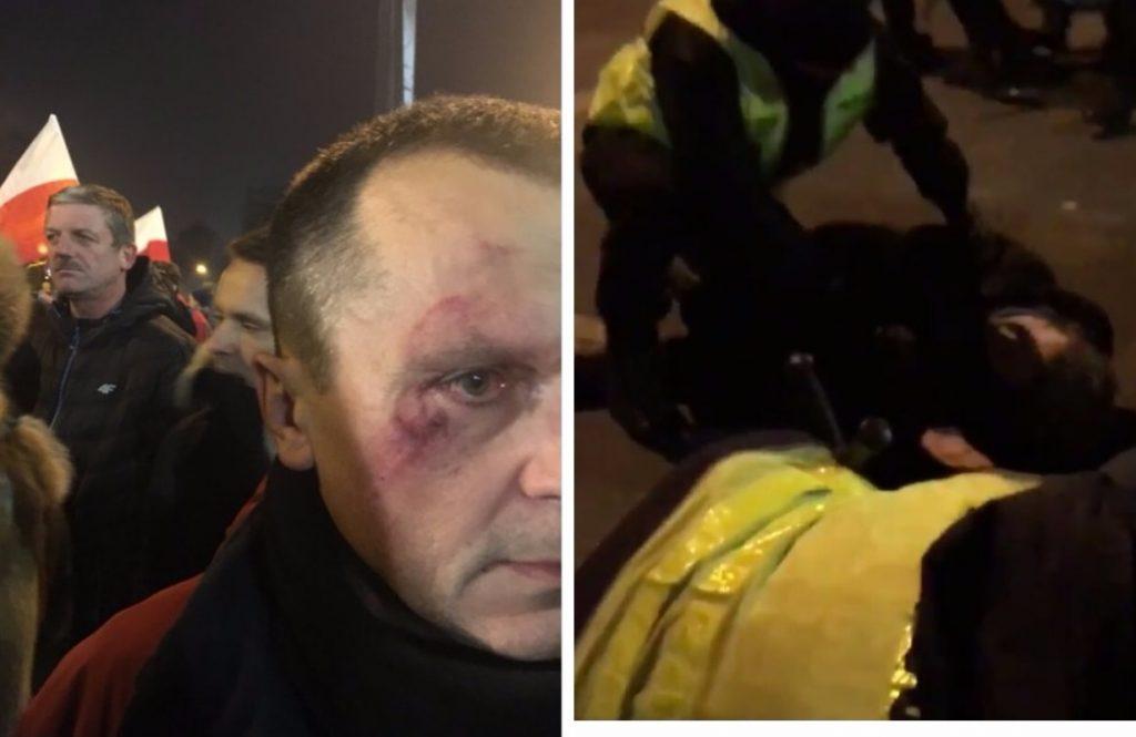 Nagrania z zamieszek pod Sejmem. Policja użyła siły, ambulansy zabrały rannych (video)