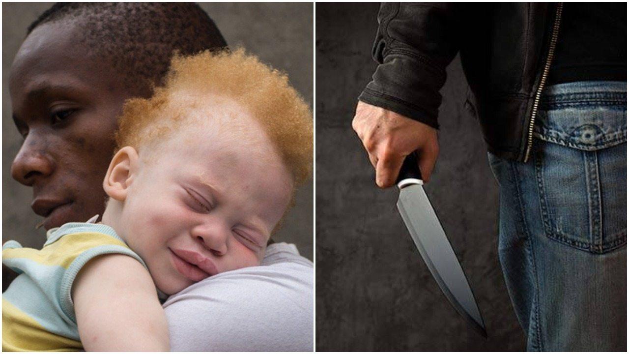 Polowania na albinosów. To jest chore, pragną części ich ciał