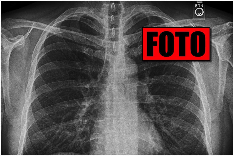 Lekarze myśleli, że ma raka płuc. Gdy odkryli prawdę, wybuchnęli śmiechem