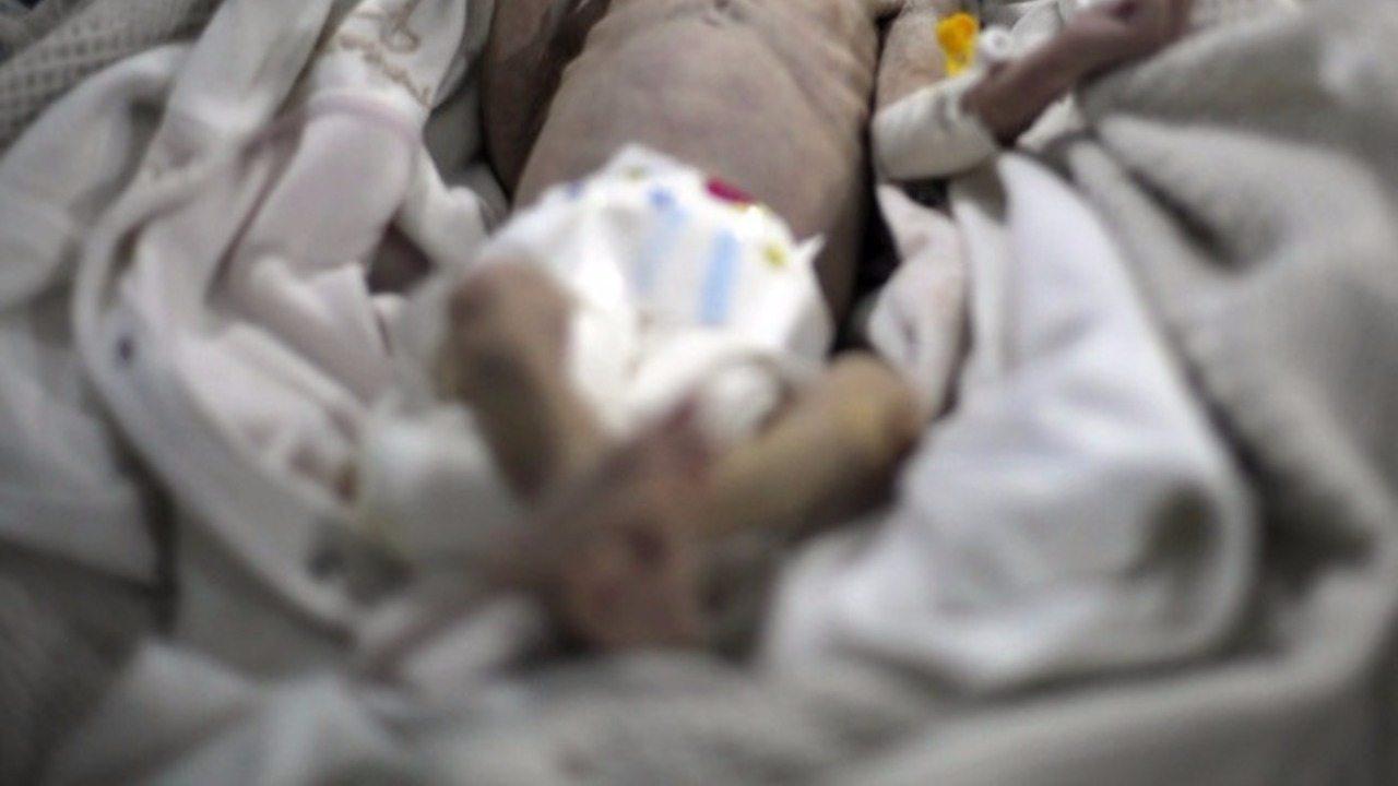 Zagłodzone niemowlę. Te zdjęcia szokują, a świat nie robi nic!
