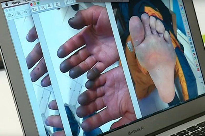 zdjęcia rąk i nóg Revol