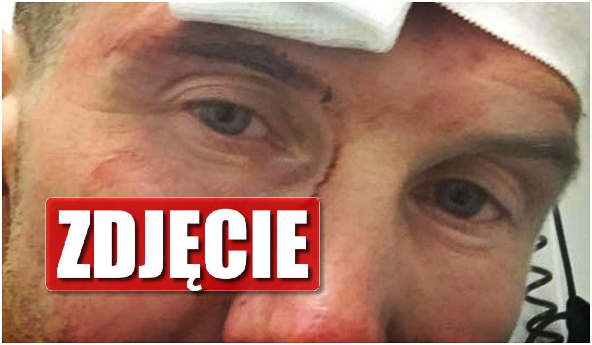 Polski muzyk miał wypadek. Jego twarz wygląda okropnie