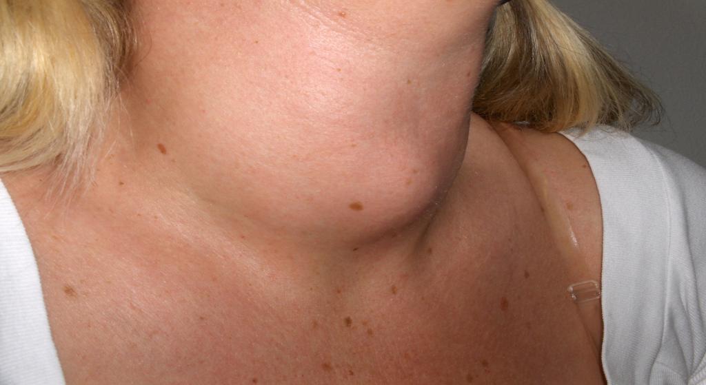 Rak gardła: Jakie są przyczyny i objawy?