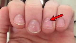 Białe plamki na paznokciach: To może być groźna choroba!