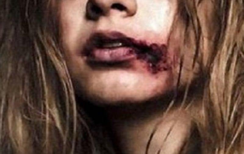 Gwiazda Polsatu pokazała brutalnie pobitą twarz. Szokujące zdjęcie