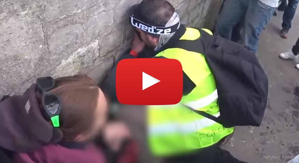 Dantejskie sceny na ulicach Paryża. Protestujący stracił rękę