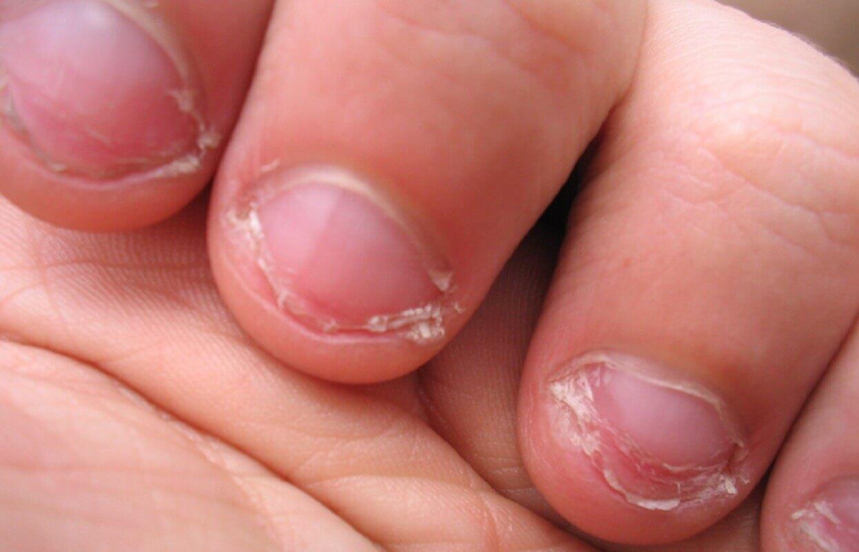 Przez obgryzanie paznokci zachorowała na raka. Niestety, zakończyło się amputacją