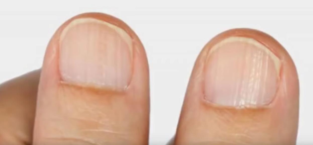 Obgryzanie paznokci może zabić! Przez zgubny nawyk ledwie uszedł z życiem
