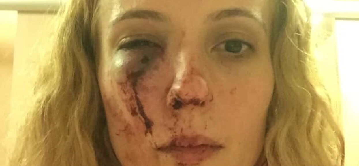 Została brutalnie pobita. Bo myśleli, że jest Polką