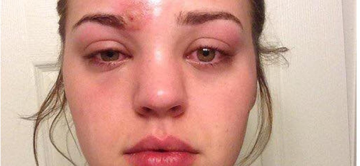 21-latka omal nie straciła życia. Wszystko przez makijaż