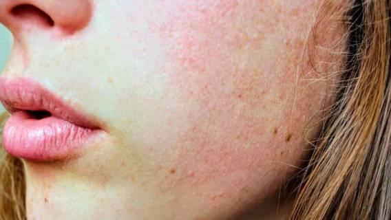 Prosty, domowy sposób na przebarwienia na twarzy. Będziecie zdumieni, jakie to tanie!