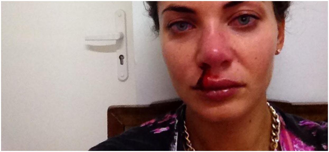 Wodzianka Wojewódzkiego wiedziała, że wywoła skandal, ale musiała przerwać milczenie. Bita i upokarzana w domu, 4 razy przeszła próbę samobójczą