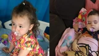 Zauważyła dziwny objaw u swojej córeczki. Okazało się, że to guz mózgu