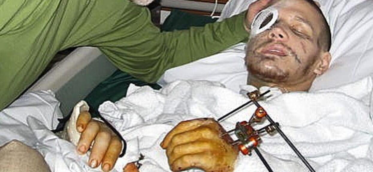 Osłonił przyjaciela własnym ciałem. Mimo że cudem przeżył, lekarze uznali go za martwego