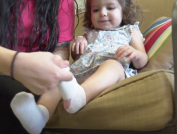 Gdy odebrała roczną córeczkę ze żłobka, była przerażona. Stópki dziecka były w strasznym stanie