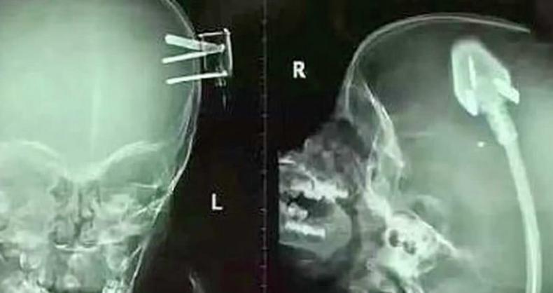 Zdjęcie rentgenowskie głowy tego dziecka, aż odebrało lekarzom mowę. Rodzice 2-latka ostrzegają innych