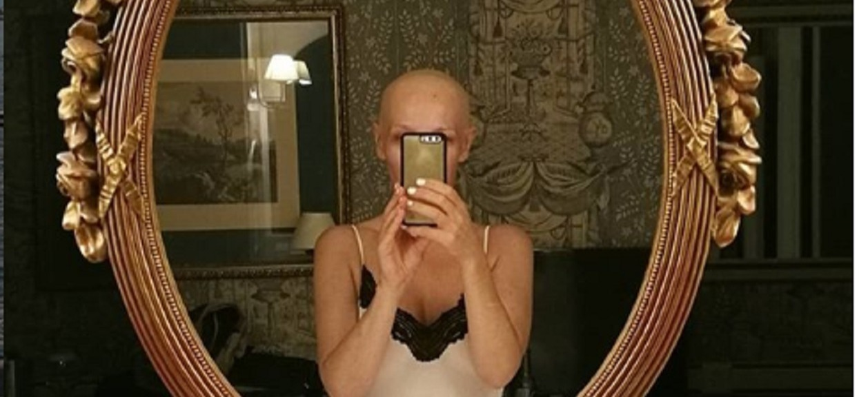 Dramat gwiazdy DDTVN. Zdiagnozowano u niej rzadki przypadek hormonozależnego raka