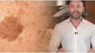 Dermatolog ujawnił, jak usunąć brązowe plamy z twarzy i ciała. Wystarczy zastosować 1 prosty trik