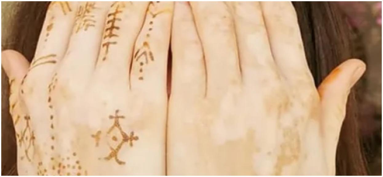 Przepiękna Kasia Smutniak choruje na bielactwo. Jest niewiarygodnie śliczna