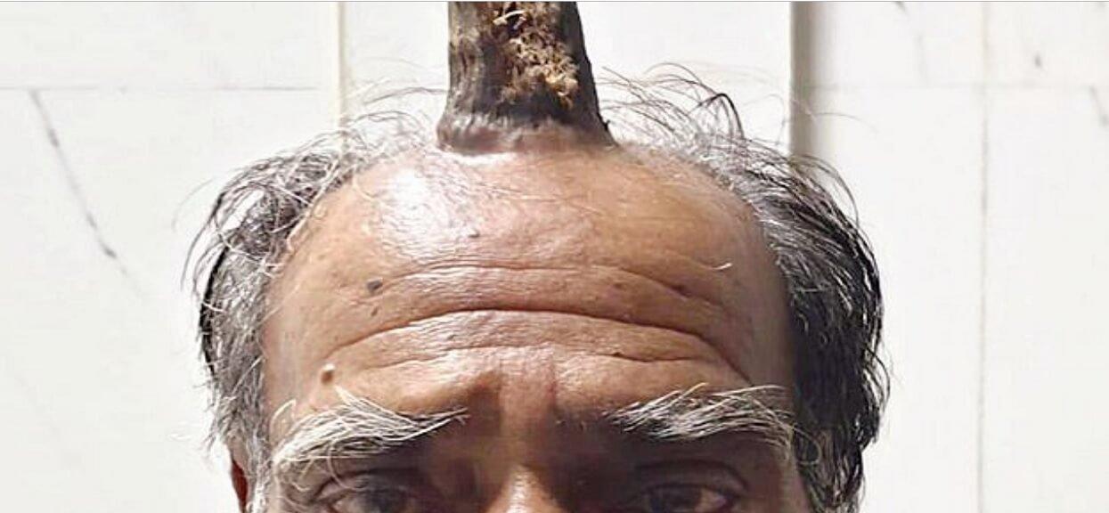 Mężczyzna uderzył się w głowę, niedługo potem wyrósł mu na niej dziwaczny róg. Konieczna była operacja