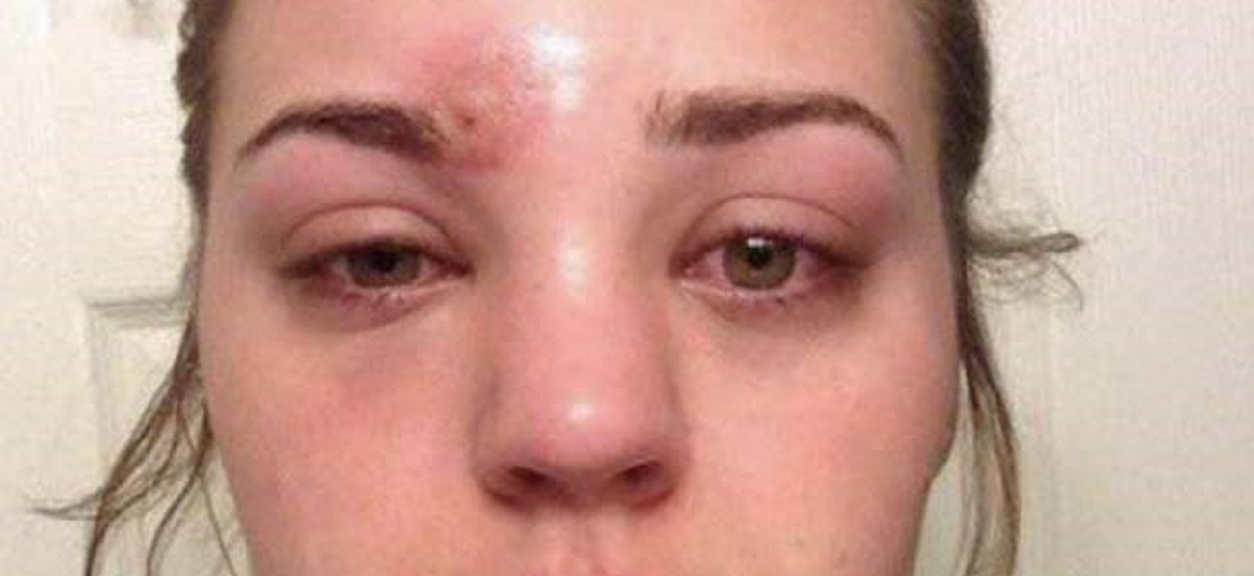 Nastolatka myślała, że wyciska pryszcza. Kilka godzin później lekarze walczyli o jej życie