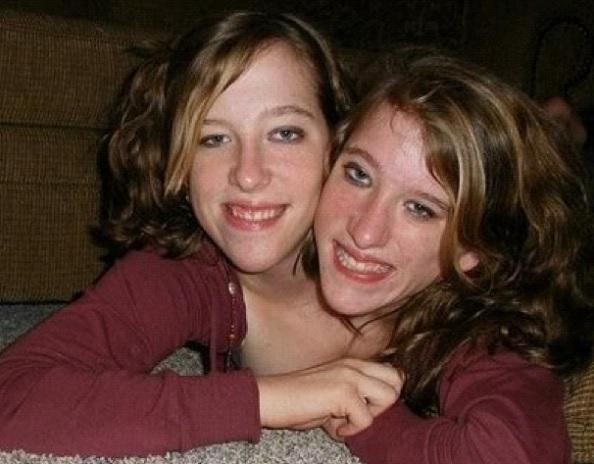 Najsłynniejsze siostry syjamskie skończyły już 27 lat. Niedawno podjęły przełomową decyzję
