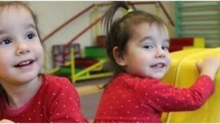 4-letnia Tosia przeszła poważną operację. To, jak teraz w rehabilitacji pomaga jej siostra bliźniaczka, porusza serca