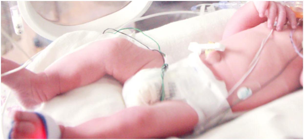 Kiedy urodziła dziecko, natychmiast je od niej zabrano. Jego twarz była monstrualnych rozmiarów, nie mógł nawet zapłakać