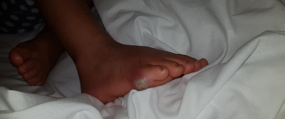 4-latka przymierzała nowe buty w sklepie, zaraziła się śmiertelną infekcją. Zdruzgotana mama ostrzega innych