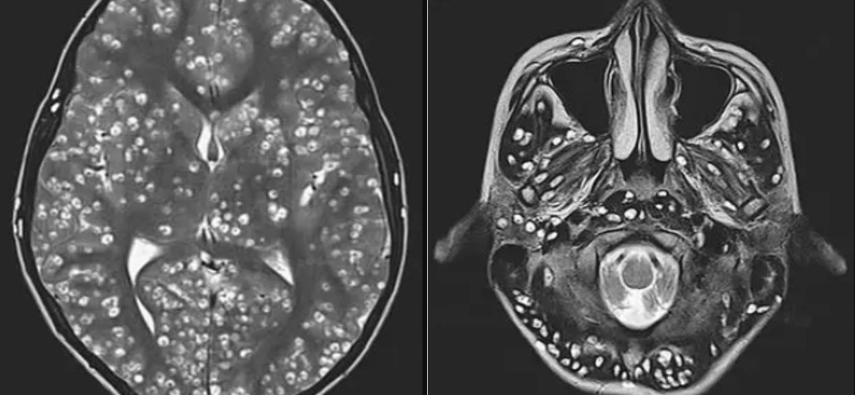Lekarze pobledli, widząc rezonans mózgu nastolatka. Zjadł popularne mięso, niestety, nie udało się go uratować