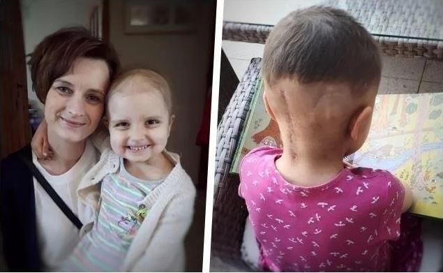 6-letnia Asia przeszła operację mózgu, ale to był dopiero początek. Lekarze znaleźli groźny ogromny nowotwór, trwa dramatyczna walka z czasem