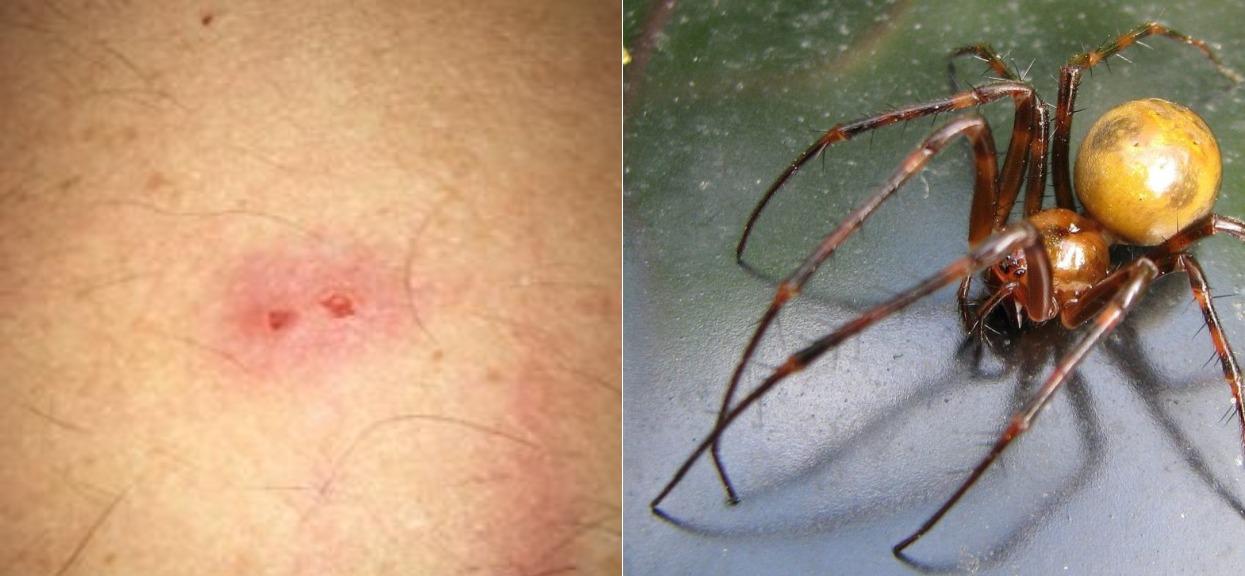 Jadowite pająki występują również w Polsce