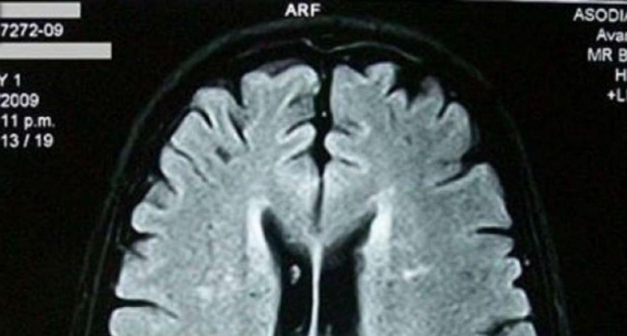 Naukowcy twierdzą, że bycie zapominalskim to w istocie przejaw niebywałej cechy umysłu. Można pozazdrościć