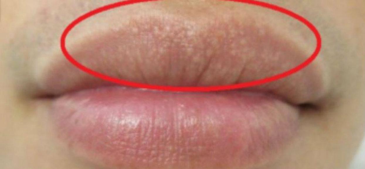 Takie plamki na ustach nie pojawiają się przypadkowo. Wiemy, jak skutecznie się ich pozbyć