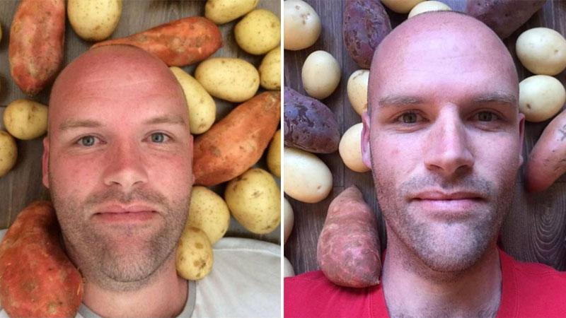 Przez rok jadł tylko ziemniaki. Imponujący efekt diety