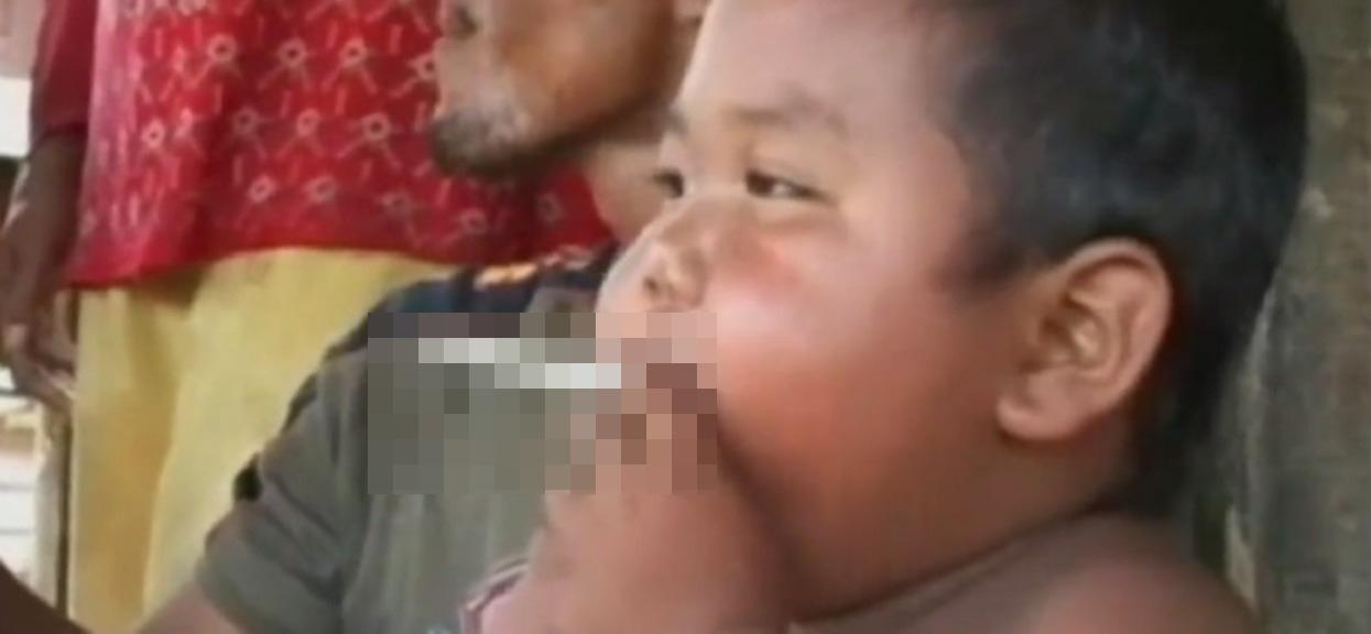 Chłopiec z zespołem Downa pociesza autystycznego kolegę. Widok odbierający mowę