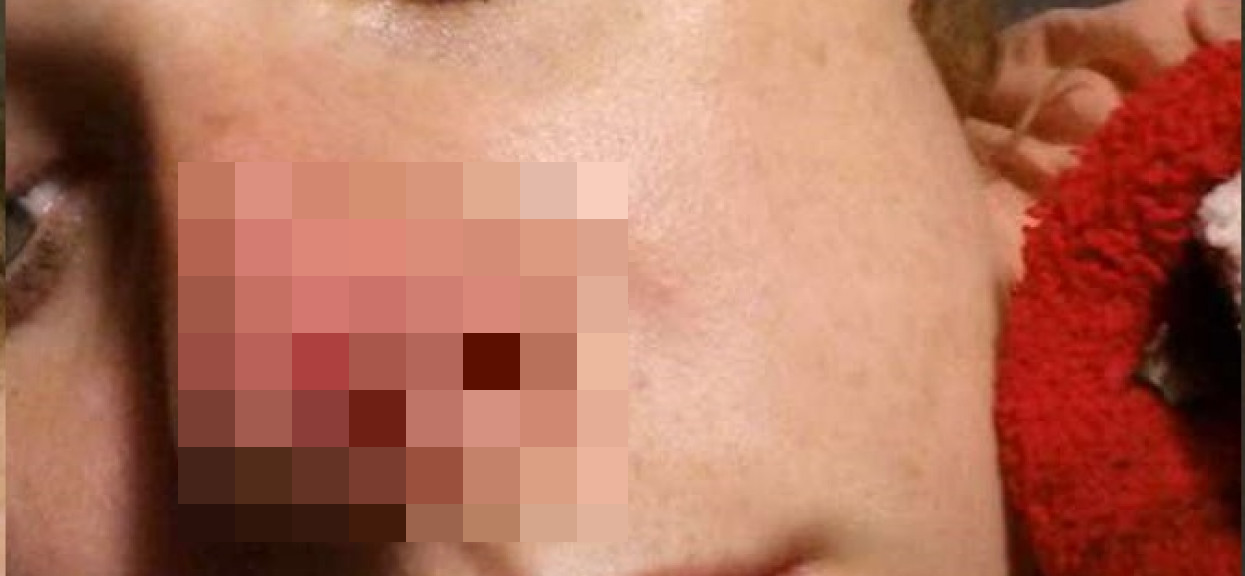 Myślała, że ma na nosie zwykłą krostkę. Prawda okazała się druzgocząca, konieczna była operacja