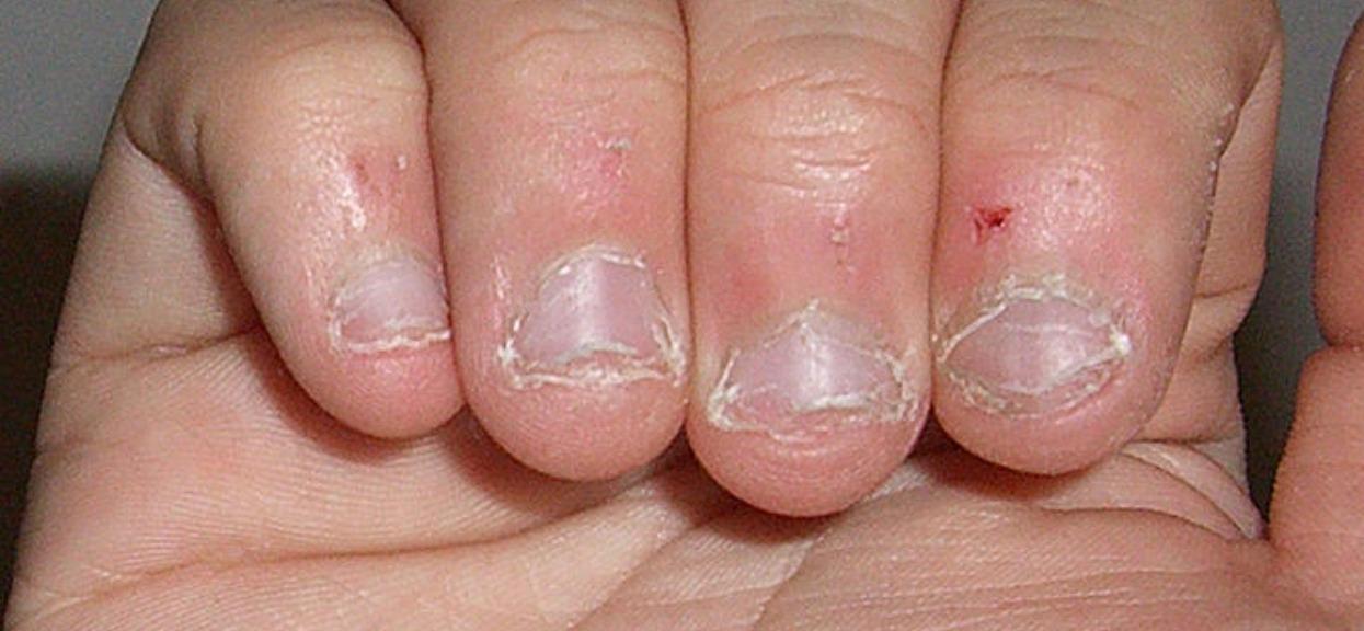 Obgryzasz paznokcie? Psychologowie nie mają wątpliwości, nawyk zdradza o Twojej osobowości więcej, niż myślisz