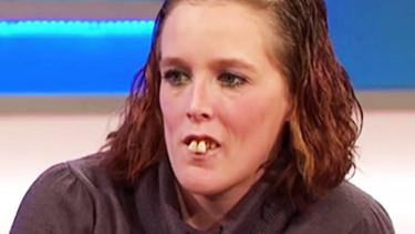Wszyscy drwili z jej zębów, wyzywali od najgorszych. Dzisiaj jej wygląd onieśmiela