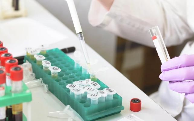 Ministerstwo zdrowia ujawniło, ile wykonano testów przez ostatnią dobę. Wystarczająco?