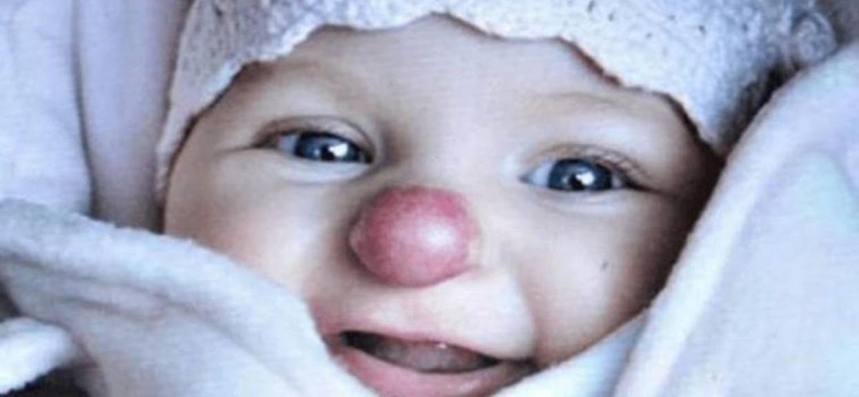 Dziewczynka nos klauna