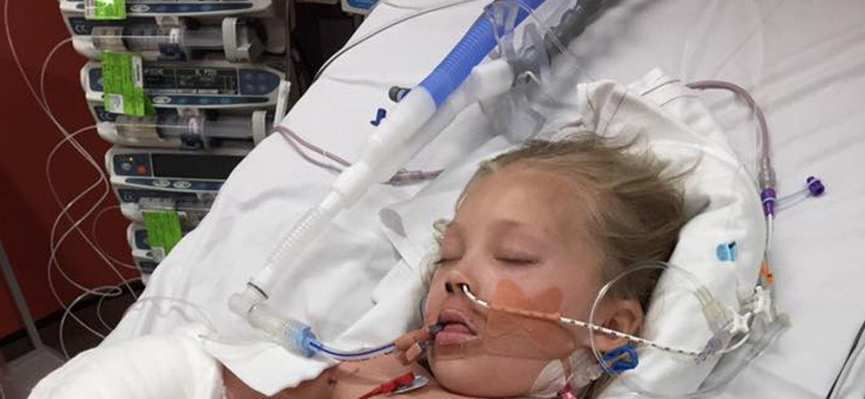 Siniaki na ciele bez urazu choroba córki