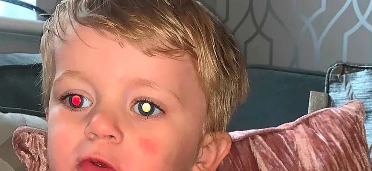 Zrobiła synkowi zwykłe zdjęcie, flesz ujawnił niepokojący szczegół. Natychmiast poszli do lekarza, diagnoza była druzgocząca