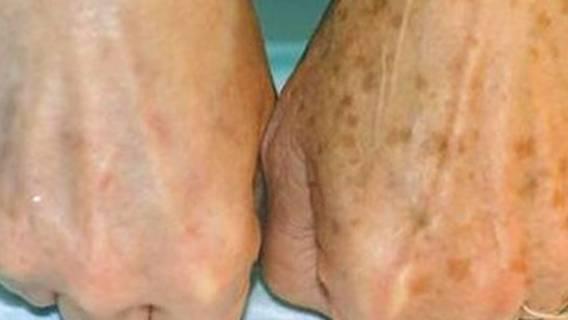 Zdrowie przekłada się na wygląd naszej skóry.