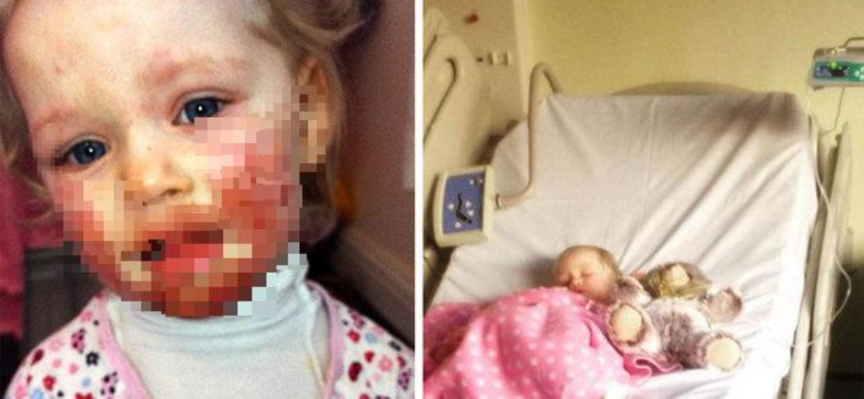 Córka miała rany na ciele