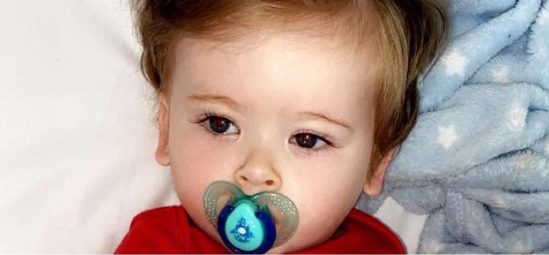 Roczny chłopiec cierpiał przy każdym szczotkowaniu włosów. Gdy rodzice zabrali go do lekarza, nie mogli uwierzyć w straszną diagnozę