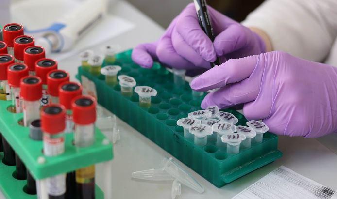Wiadomo, kiedy może powstać szczepionka na koronawirusa, padła konkretna data. Lekarze właśnie zaczęli testy