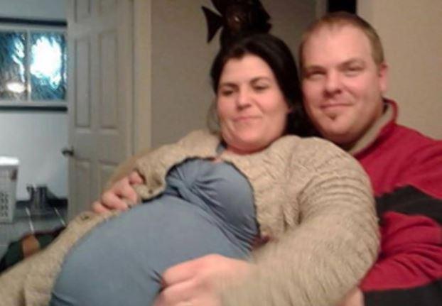 Brzuch kobiety rósł w nieskończoność, myśleli, że to ciąża. Partner od razu ją zostawił, gdy zobaczył, co faktycznie jest w środku