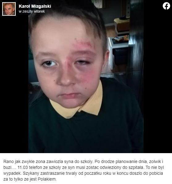 Chłopiec został pobity