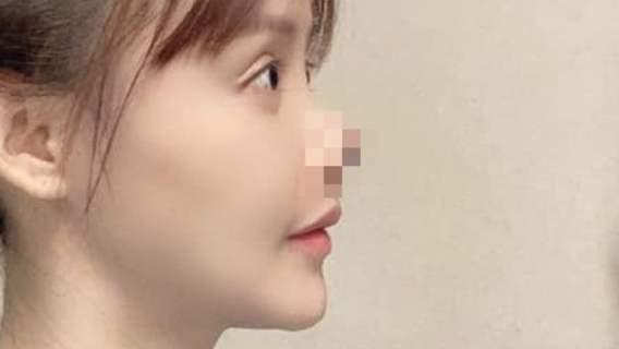 Aktorka poddała się operacji nosa